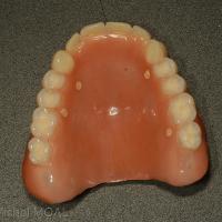 Appareil polymérisé et équipé de gutta percha