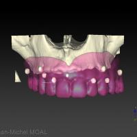 Visualisation numérique des marques de gutta sur la prothèse rebasée
