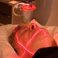 Scannage du patient prothèse en bouche, calée sur le mordu
