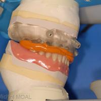 Mordu entre la prothèse du bas et le guide maxillaire sur le moulage initial