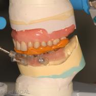 Mordu entre la prothèse du haut et le guide mandibulaire sur le modèle de travail
