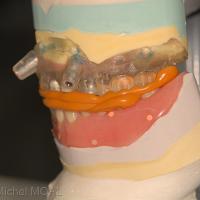 Mordu entre la prothèse du bas et le guide maxillaire sur le modèle de travail
