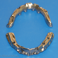 Armatures Procera implant bridge®