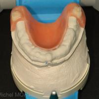 Contrôle de l'application de la prothèse découpée sur le moulage initial