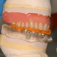 Mordu entre la prothèse du haut et le guide mandibulaire sur le moulage initial