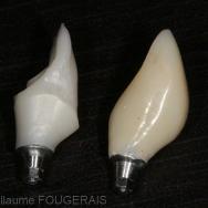 comparaison entre la couronne provisoire et la pièce prothétique en zircone usinée sur base titane