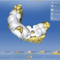 Fig 1 : modélisation du guide chirurgical dans le logiciel CEREC (version 4.4)