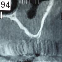 Fig. 2 : Coupe coronale montrant une hauteur de plancher du sinus d'un millimètre
