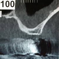 Fig.3 : Coupe coronale plus postérieure