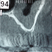 Fig. 2 : Scan showing an about 1-mm-high sinus floor