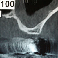 Fig. 3 : More posterior scan
