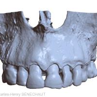 Fig. 1 : Modèle osseux virtuel