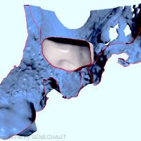 Fig. 10 : plan de coupe montrant le rapport du greffon osseux virtuel avec la zone à greffer