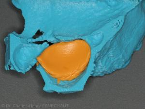 Fig. 3 : Silicone appliqué dans la cavité du sinus