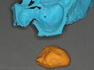 Fig. 4 : Silicone retiré du modèle osseux après sa prise
