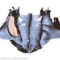 Fig. 10 : Greffon osseux virtuel en place sur le modèle osseux virtuel