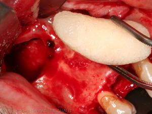 Fig. 2 : Greffon osseux introduit dans le sinus