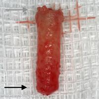 Fig. 7 : Biopsie prélevée au niveau du site implantaire de 16 flèche grise : partie apicale et flèche noire : partie crestale