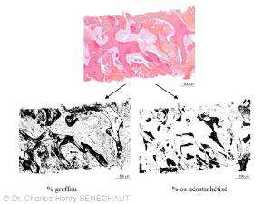 Fig. 4 : Analyse histomorphométrique : évaluation du %  de greffon résiduel et d'os néosynthétisé