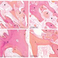 Fig. 6 : Plages d'os néosynthétisé cellulaire (✩) accolées localement sur les travées acellulaires du greffon (*)