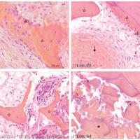 Fig. 7 : Les ostéocytes sont visibles dans leur logette, les ostéoblastes en cours d'intégration dans la matrice osseuse ou en bordure de l'os néosynthétisé (ob). De rares ostéoclastes sont visualisés (oc).