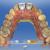 Vue palatine du projet prothétique numérique (11 et 21) dans le logiciel CEREC