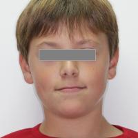 Face en prognathie mandibulaire.
