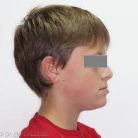 Profil en prognathie mandibulaire.