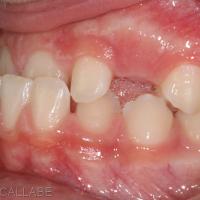 Occlusion dentaire en classe III