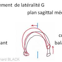 2 - Etirement de la zone rétro-discale du coté balançant lors de la mastication