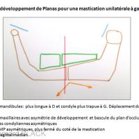 3 - Lois du développement de Planas en cas de mastication unilatérale