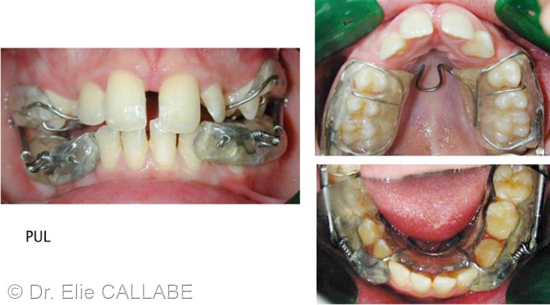 Une Classe II hyper divergente avec dents incluses. - ODF