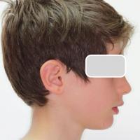 Profil avant traitement