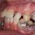 Extraction ou propulsion mandibulaire ? - La Classe II division 1 brachyfaciale