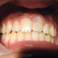 une-Pourquoi ma dent se colore ?
