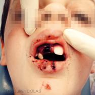 Quel discours à tenir dans un cas de traumatisme dentaire ?