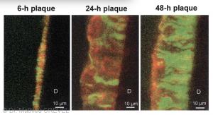 D'après l'article de JM Ten CATE: Evolutions chronologiques de la plaque dentaire en microscopie confocale