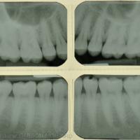 3b. Bilan radiographique de dépistage dento-parodontal. Notez l'absence d'alvéolyse.
