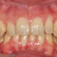 2a. Patiente de 33 ans, non fumeuse et sans problème de santé, se présentant pour une mobilité croissante de sa deuxième prémolaire maxillaire droite (25). Notez le très bon niveau d'hygiène orale et le faible niveau d'inflammation de la gencive marginale.