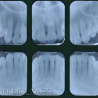 2b. Bilan radiographique rétro-alvéolaire mettant en évidence une parodontite localisée agressive.