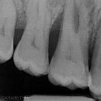 6. LIR sur 16 évidente. L'angle formé entre le sommet de la crête osseuse, le toit de la furcation et la jonction amélo-cémentaire est très ouvert.