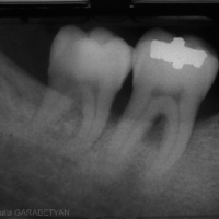 7. Image radiographique d'une lésion inter-radiculaire mandibulaire. Le toit de la furcation est situé nettement au-dessus de la crête osseuse. Radio-clarté au niveau de la furcation.