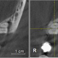 8. LIR de classe III sur une molaire mandibulaire.
