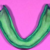 Les bords vestibulaires et linguaux sont enduits de l'adhésif spécifique aux polyéthers.