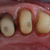 Trois préparations périphériques ont été réalisées sur les dents 23, 24 et 25 pour tenir compte de leur délabrement. Les reconstitutions préalables ont été réalisées avec une résine de reconstitution et un tenon en fibre de verre.