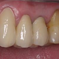 Vue vestibulaire et occlusale des trois restaurations scellées. Le passage du fil dentaire permet de vérifier l'élimination complète du ciment dans les embrasures.