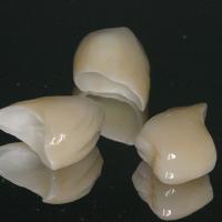 Des coiffes en céramique avec armature en zircone ont été réalisées.