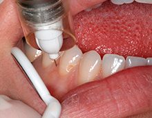 Le blog Anesthésie et douleur orale