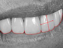 Blog Dentisterie Esthétique
