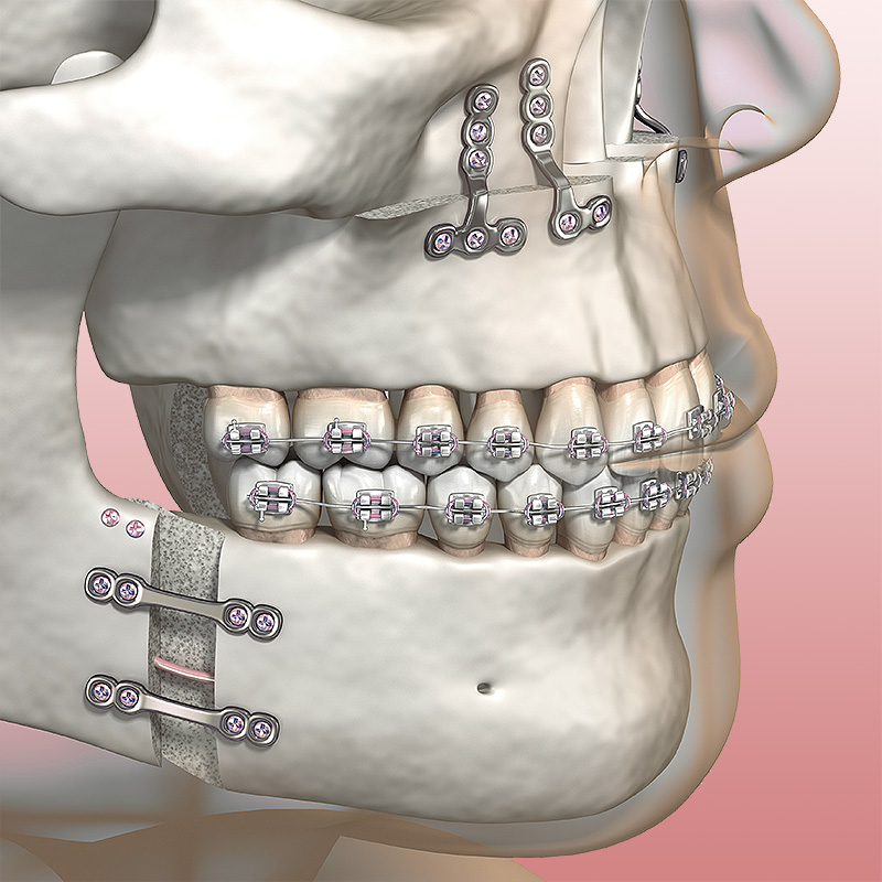 Chirurgie orale, maxillo-faciale et médecine buccale